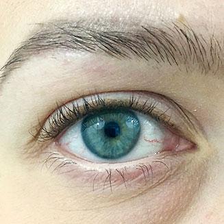 Silmä, katkoviivarajaus